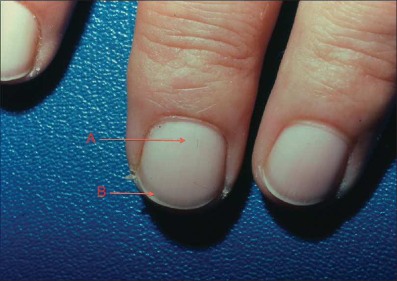 Terry S Nails A Sign Of Systemic Disease Witkowska Ab
