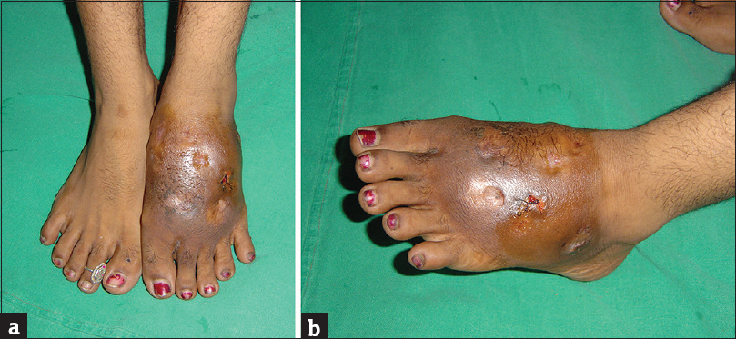 Figure 1: (a and b) A female patient with gross swelling of the left foot and ulcers in various stages of healing, with serosanguinous discharge from the active ulcer. Furthermore, evident is the pigmentary changes on the overlying skin