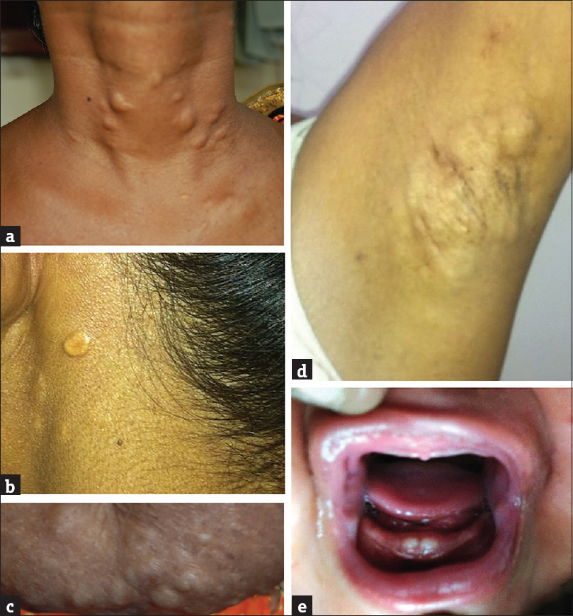Figure 2: Multiple cysts present on the neck, axillae, and abdomen; (a and c) proband from Family 1, (b and d) the affected individual from Family 2. (e) Affected individual from Family 4 showing natal teeth