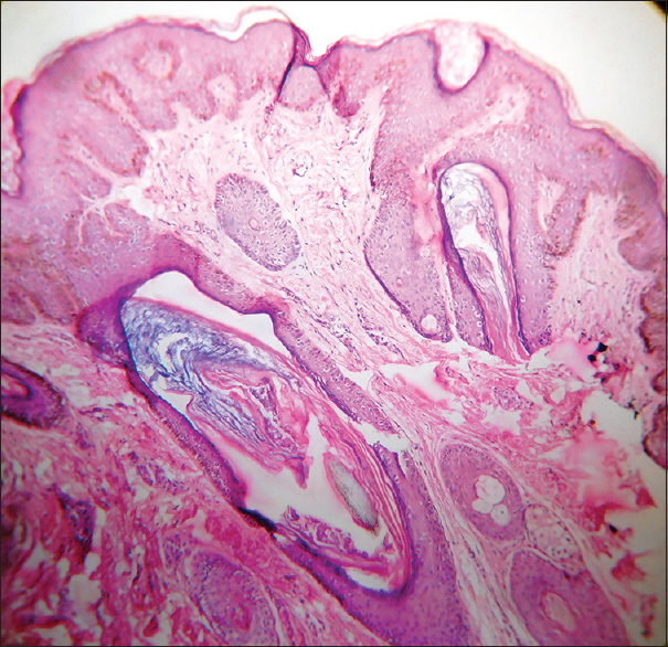 Figure 8: Photomicrograph showing papillomatosis, follicular plugging and intense melanisation of the basal layer (H&E, 100X)