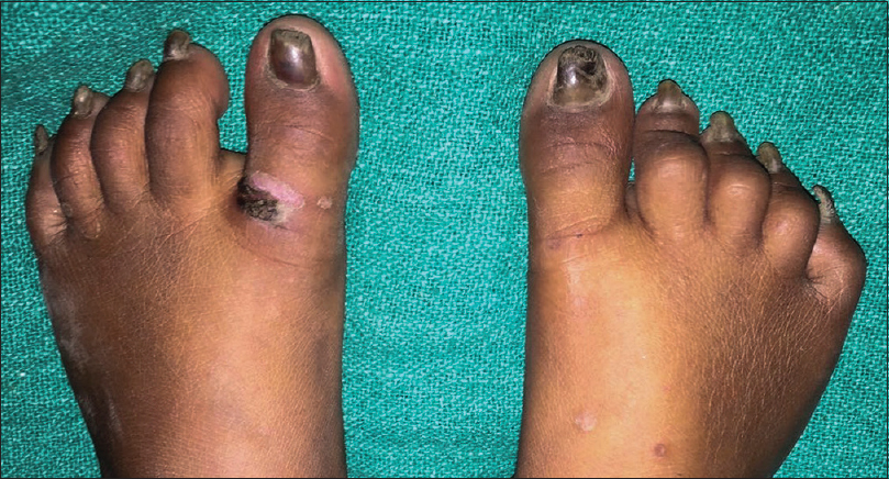 Cutaneous cysts with nail dystrophy in a young female: A classical ...
