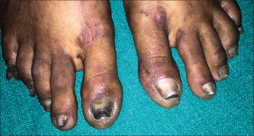Cutaneous cysts with nail dystrophy in a young female: A