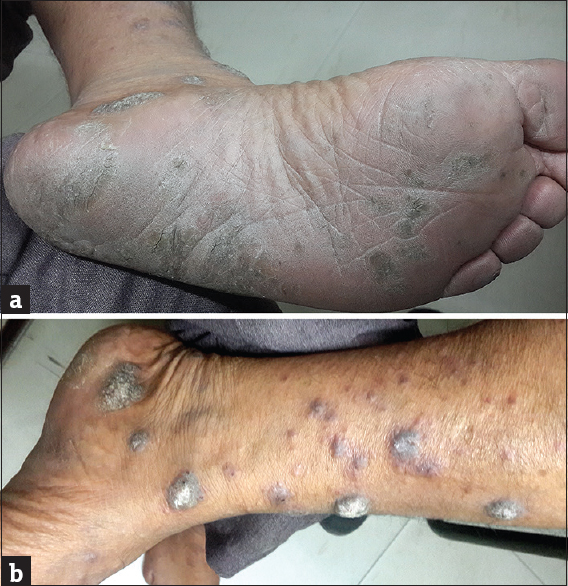 Figure 3: (a) Ill-defined erythematous to hyperpigmented hyperkeratotic scaly plaques with a rough surface (eczematous type – hyperkeratotic). (b) Hypertrophic lichen planus lesions on the legs and feet in the same patient