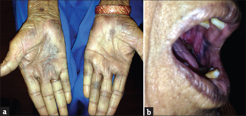 Figure 4: (a) Ill-defined hyperpigmented scaly plaques with a smooth glazed surface (eczematous type – glazed), a typical lichen planus lesion is seen proximal to the wrist. (b) Oral lichen planus in the same patient
