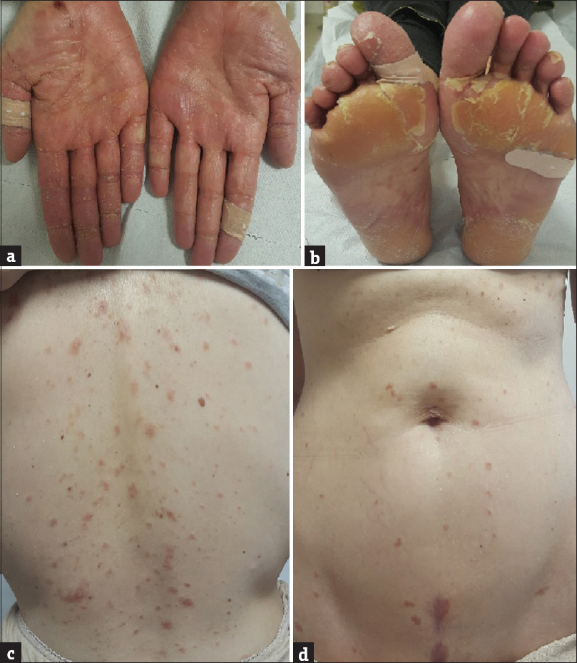 Figure 1: (a and b) Well-defined erythema, oedema, and desquamation on the palmoplantar region. (c and d) Erythematous papules and plaques on the back and abdominal region