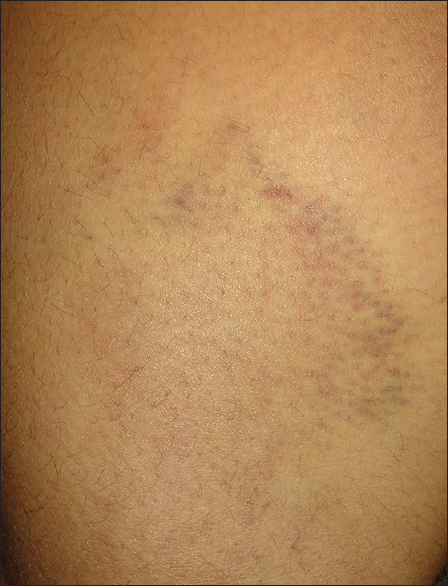 Figure 1: Ill-defined bruises over the left thigh