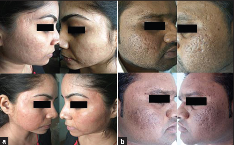 Figure 4: Side effects: a) Erythema on both the cheeks; b) Hyperpigmentation on both the cheeks