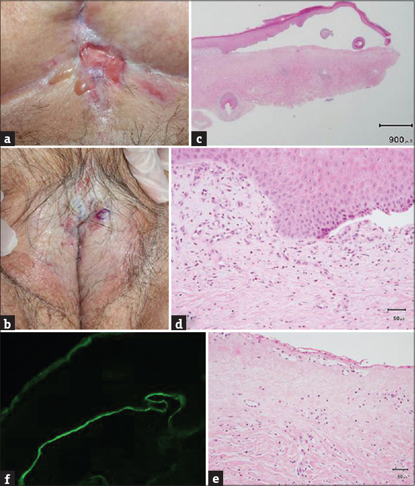 Figure 1: Tense bullae and erosions on white glossy sclerotic LSA lesions on the abdomen (a) and genitalia (b). (c) Skin biopsy revealed a subepidermal cleft and infiltration of numerous eosinophils (H and E, ×10). (d) Close-up view of the subepidermal cleft in Figure 1c (H and E, ×200). (e) Close-up view of the upper dermis in Figure 1c (H and E, ×200). Note pronounced edema and collagen homogenization in the upper dermis. (f) Direct immunofluorescence showed linear deposits of immunoglobulin G in the basement membrane zone (×200)