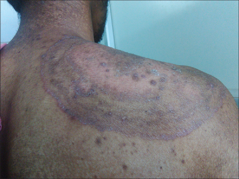 Figure 1: Hypopigmentation and follicular papules in steroid modified tinea