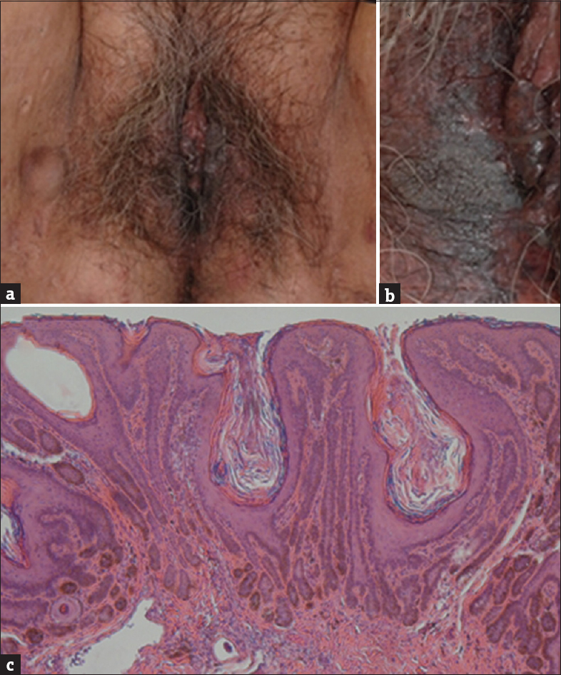 Figure 1 A And B Multiple Brown Reticulate Pigmentary Macules On Labia Minora