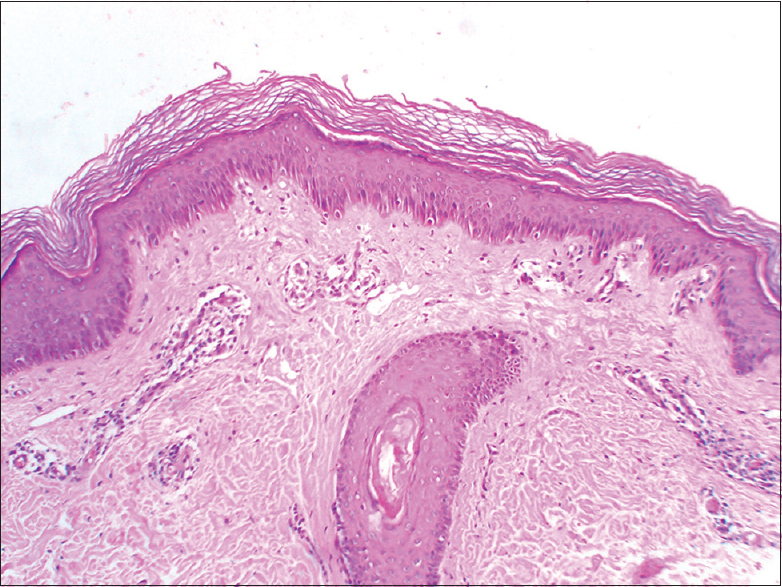 Atypical adult-onset pityriasis rubra pilaris in an HIV