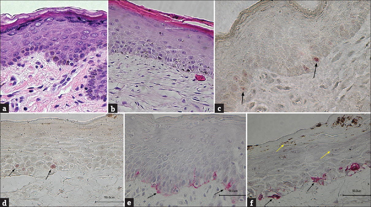 Figure 1: The epidermal structure of the tissue-cultured skin equivalent corresponds to human skin. Sections prepared from the native human skin (a, c and f) and tissue-cultured skin equivalents (b, d and f) were similar. H/E (a and b); Ki-67 (c and d); HMB-45 (e and f)