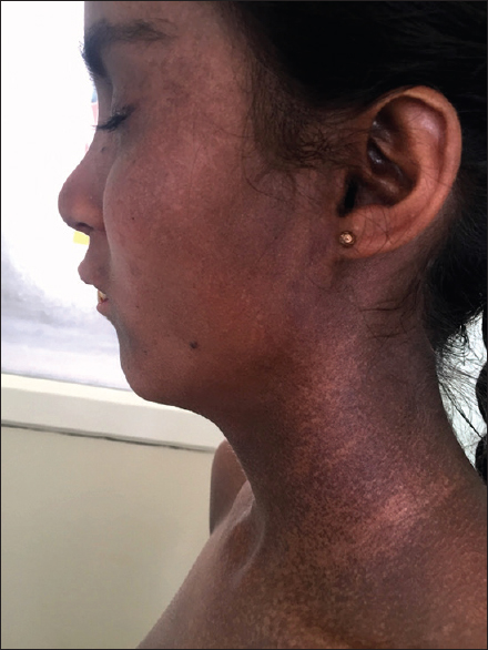 Figure 1: Reticulate pigmentation over the face and neck