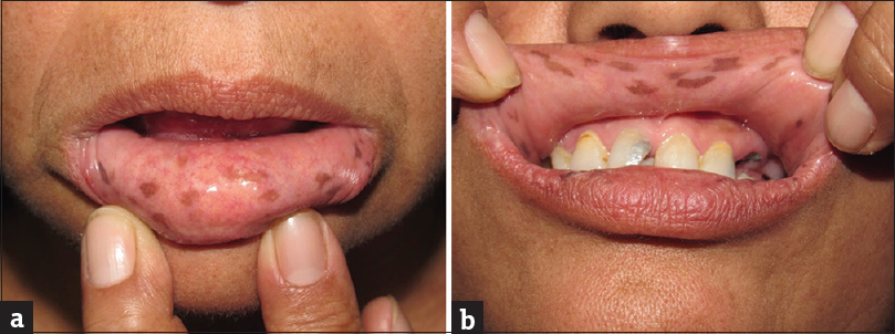 Figure 1: (a and b) Presence of multiple hyperpigmented macules in labial mucosa, hard palate and tongue