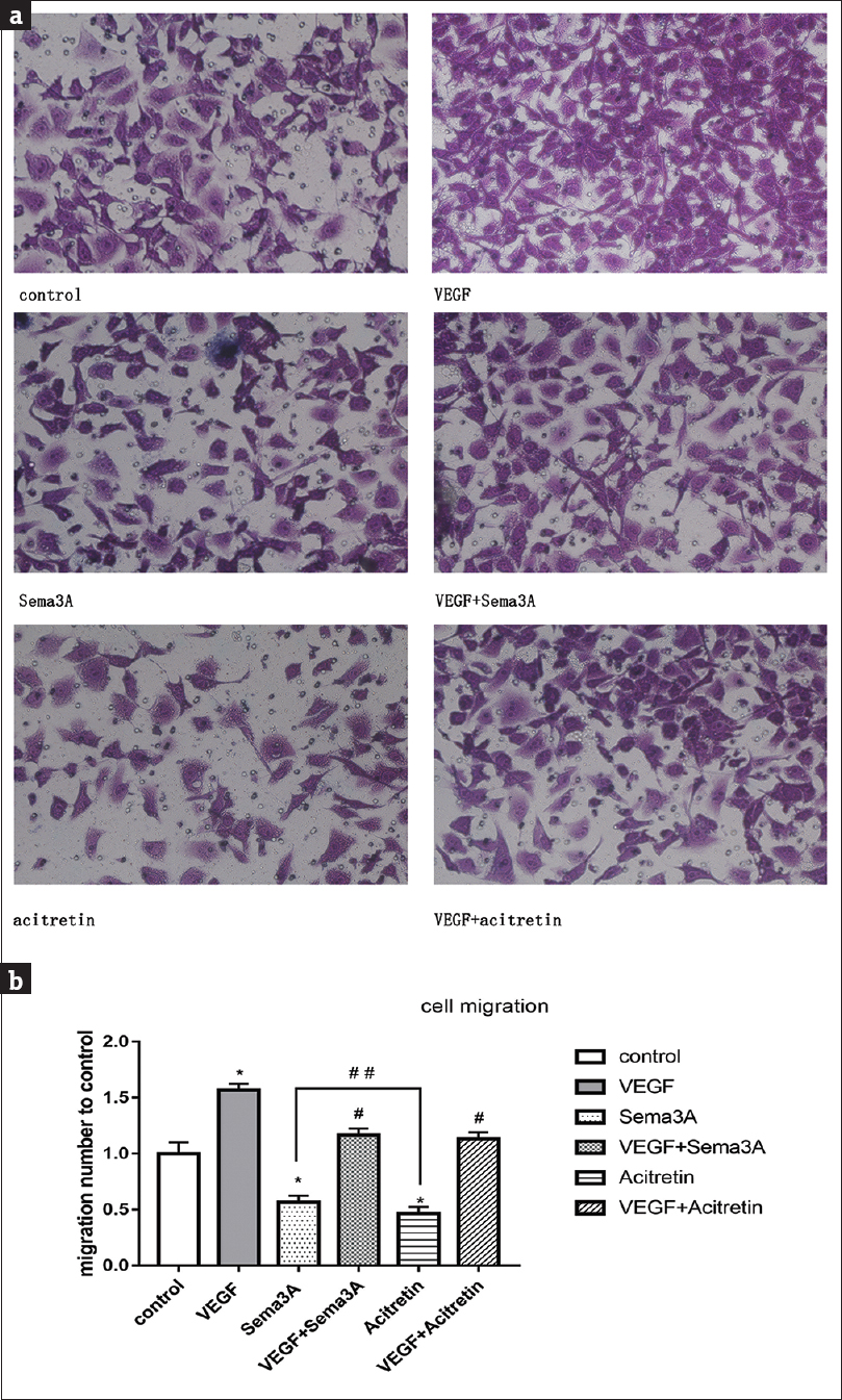 Figure 3: The ability of cell migration of HaCaT cells in different groups. (a) Several randomly chosen fields were photographed in different groups. (b) When compared with the control group, both semaphorin 3A and acitretin restrained the migration of HaCaT cells, while vascular endothelial growth factor clearly accelerated its migration. *<i>P</i>�<�0.05, **<i>P</i>�<�0.005 versus control group. <sup>#</sup><i>P</i>�<�0.05, <sup>##</sup><i>P</i>�<�0.005 versus vascular endothelial growth factor exposed groups