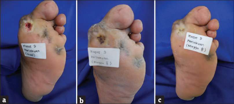 Figure�2: (a) Before treatment.�(b) Second week after treatment.�(c) Ulcer completely healed on third week after treatment