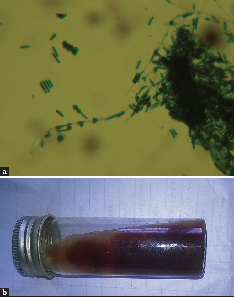 Figure 3: (a) Microphotograph of <i>Trichophyton rubrum</i> showing pencil-shaped macroconidia (Lactophenol cotton blue preparation, ×40). (b) Culture of <i>Trichophyton rubrum</i> on Sabouraud's dextrose agar showing red pigmentation