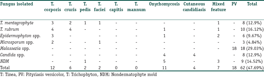 Table 4: Fungal strains isolated