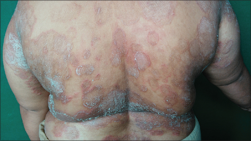 Figure 1: Extensive lesions of Tinea corporis in a middle-aged female patient