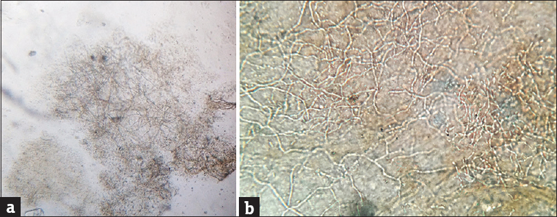 Figure 1: (a) Microscopic examination of KOH mount of skin scrapings (×40) showing branched hyphae. There is however no contrast with surrounding keratinous debris. (b) Microscopic examination of KOH mount (×400): long-branching hyphae seen as refractile elements