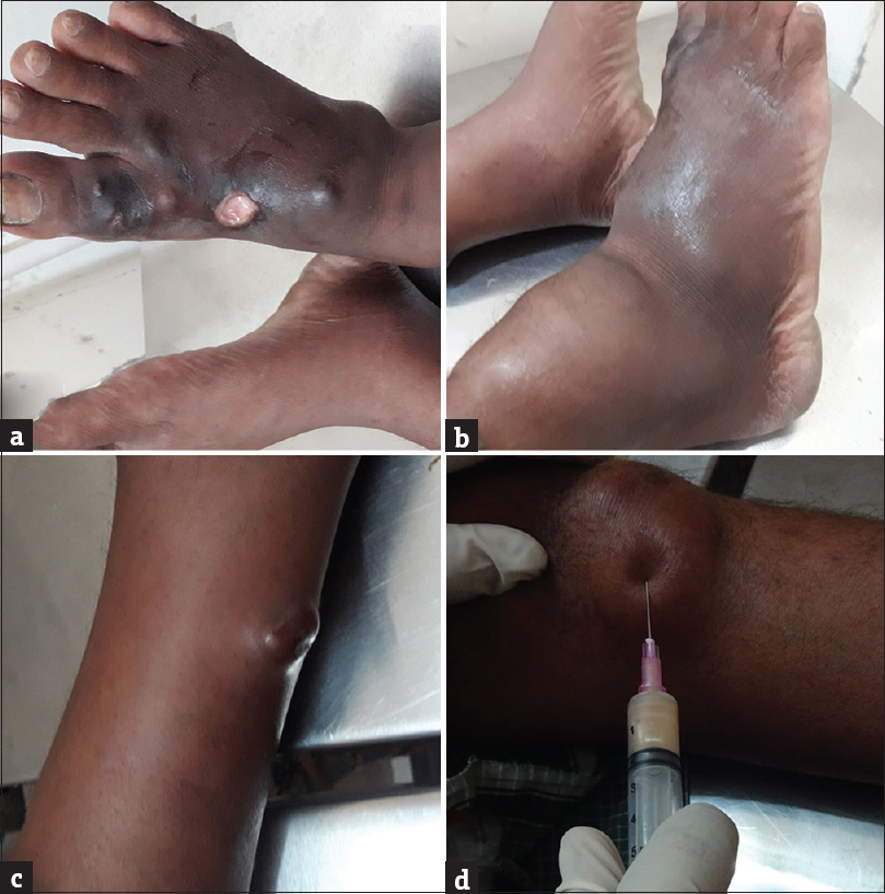 Figure 1: (a) Diffuse swelling in the right foot with multiple cystic swellings and sinuses, (b) diffuse cystic swelling in the right ankle and foot, (c) small cystic lesion in the left leg, and (d) cystic lesion near the left knee showing purulent aspirate