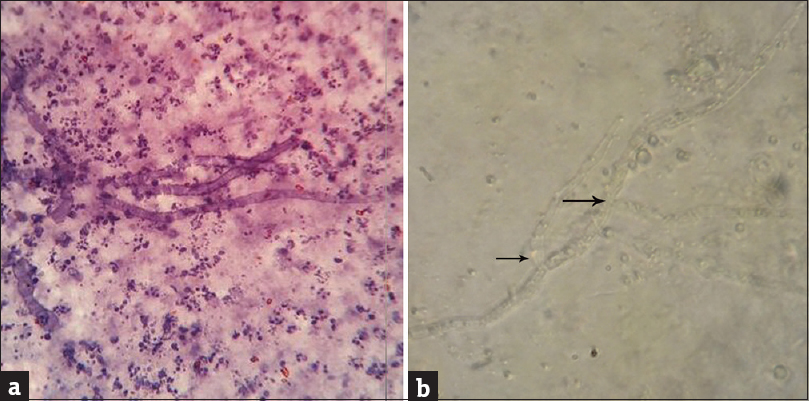 Figure 2: (a) Cytology showing cylindrical fungal hyphae with inflammatory infiltrate (H and E, ×100) and (b) potassium hydroxide mount showing hyaline hyphae branching at acute angle (black arrow) (×100)
