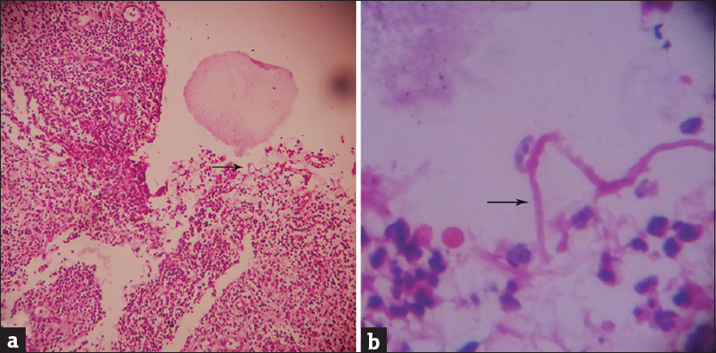 Figure 4: (a) Fungal hyphae (black arrow) with inflammatory infiltrate (H and E, ×100) and (b) cylindrical hyphae (black arrow) in higher magnification (H and E, ×400)