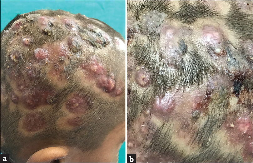 Figure 1: (a) Multiple nodules and boggy swellings on the scalp with sinuses discharging pus. Patches of cicatricial alopecia between the swellings. (b) Boggy swellings showing hemorrhagic crusts