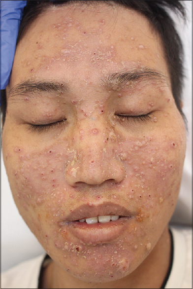 Figure 1: Clinical appearance. Disseminated umbilicated papules on the face