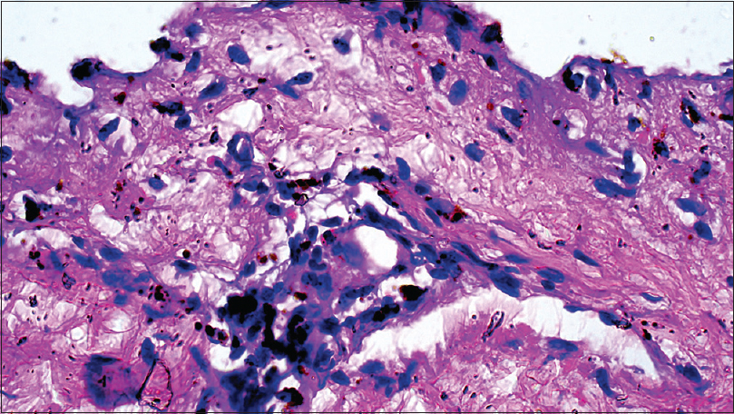 Figure 5: Photomicrograph showing pigmentary incontinence and multiple eosinophils in the dermis [H and E, ×100]