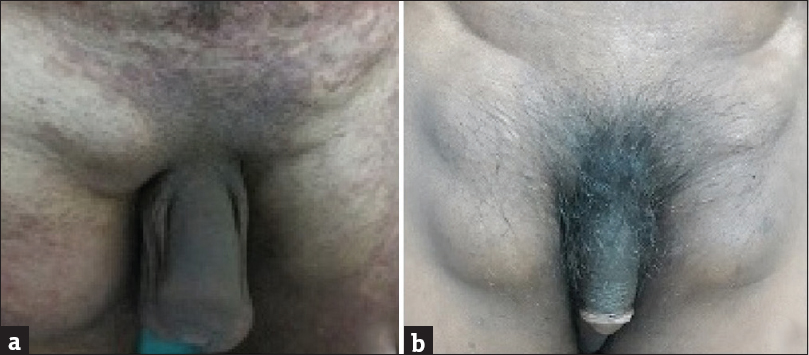 Figure 4: (a) Massive bilateral inguinal lymphadenopathy. (b) Complete regression of erythema gyratum repens and considerable decrease of lymphadenopathy following three cycles of R-CHOP therapy