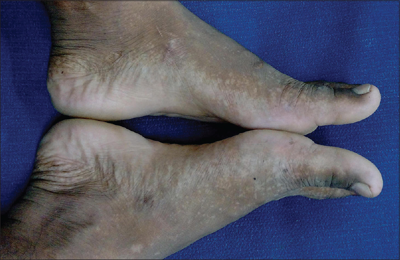Figure 2: Multiple hypopigmented macules in a speckled and reticulate pattern on sides and dorsa of feet