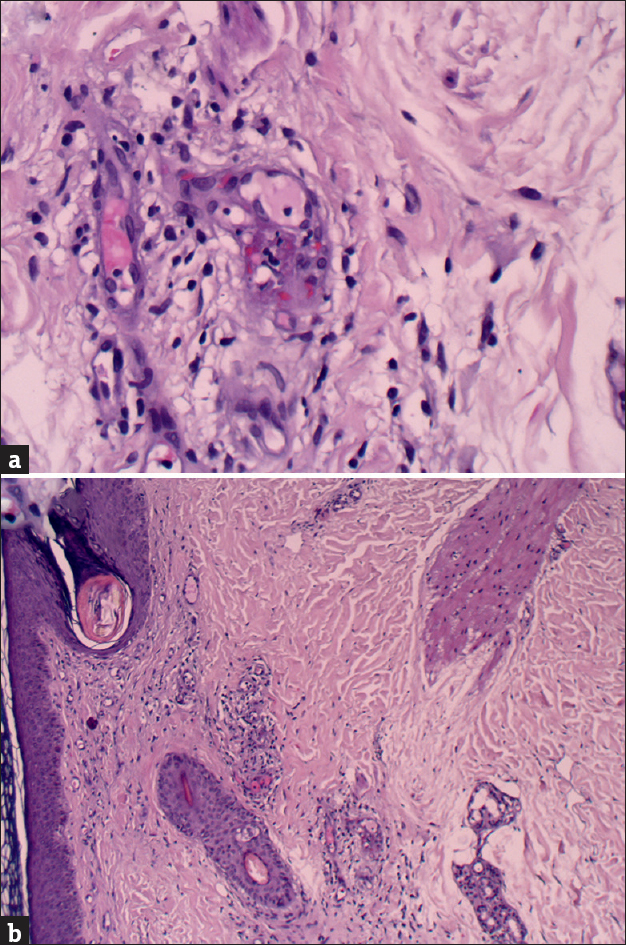 Figure 2: Histopathological examination of skin biopsy: (a) fibrinoid necrosis in the small capillary walls and polymorphonuclear leukocytes infiltrating the vascular wall (H and E, ×400); (b) basket-like hyperkeratosis and mild acanthosis in the epidermis. Fibrinoid necrosis in the small capillary walls, polymorphonuclear leukocytes infiltrating the vascular wall, edema, and erythrocyte extravasation in the papillary dermis (H and E, ×100)