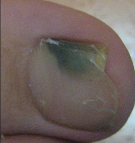 Figure 1: Green nail in otherwise health individual