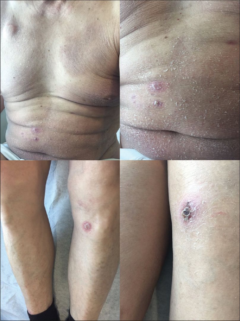 Figure 3: Scaly patches and nodules with an erythematous halo and a superficial crust located in the abdomen and lower extremities