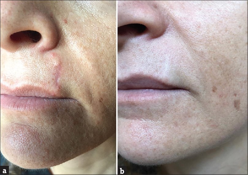 Figure 1: (a) Postsurgical scar on the upper lip, with focal hypertrophy at the peaks of the scar. (b) Complete healing after long wave plasma radiofrequency ablation treatment