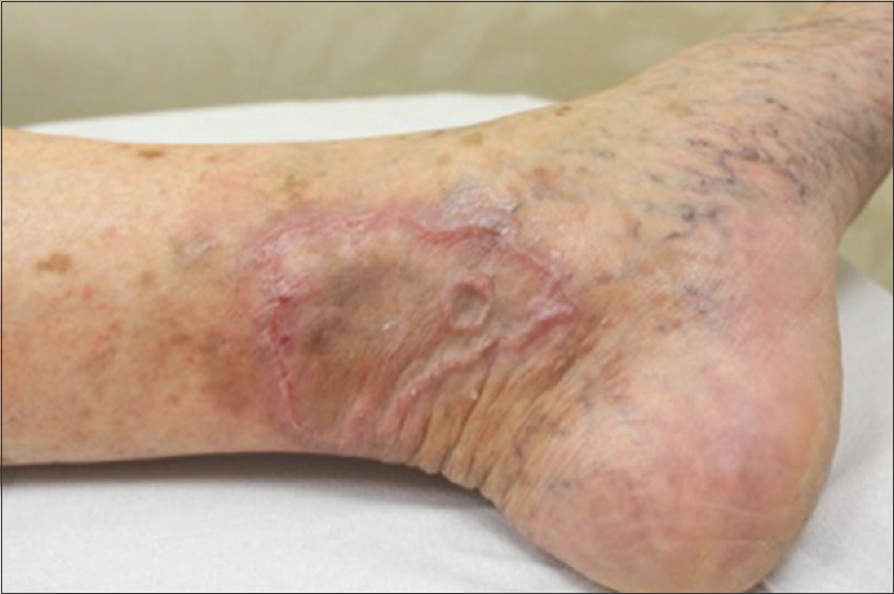 Figure 2: Annular plaque on the left medial ankle with postinflammatory  hyperpigmentation. The rim remains raised, but less erythematous. Central clearing is prominent (case 1)