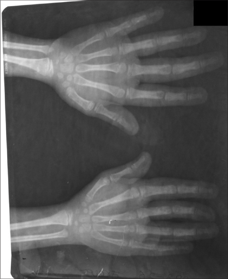 Figure 3:  Plain radiograph of hands in anteroposterior plane demonstrates enlarged metacarpal and phalanges of the index finger as well as enlarged phalanges of the middle and ring fingers of both hands with soft tissue hypertrophy