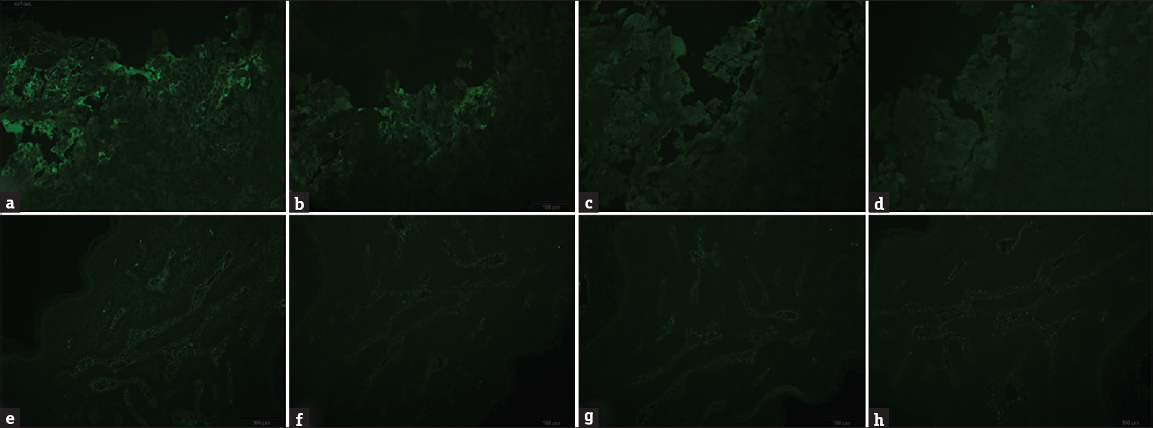 Figure 3: (a-d) Linear deposits of IgG and IgA in the intercellular spaces of acantholytic cells; (e-h) Granular deposits of IgG, IgA, IgM, and C3 in dermal blood vessel walls (fluorescein isothiocyanate, ×100)