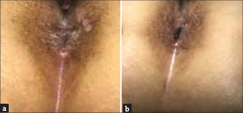 Figure 4: (a) Part of the skin lesion on perianal area regressed after 2 weeks. (b) There were only scattered papules present on the perianal area after 2 months