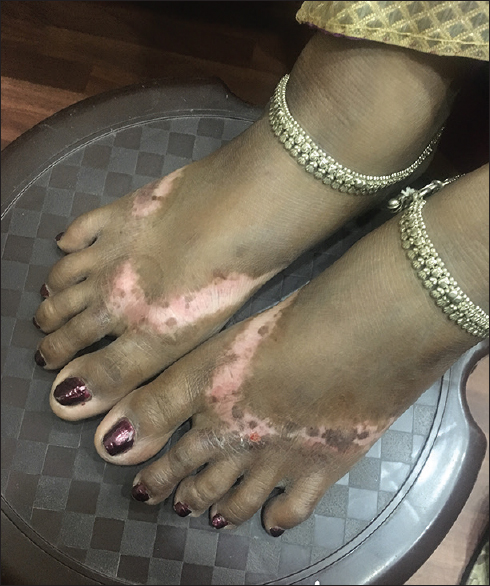 Figure 2: Chemical vitiligo on feet from rubber chappals