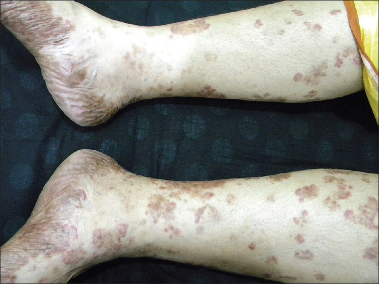 Figure 7: Chemical vitiligo from black socks involving at first feet and then spreading to upper parts of the legs