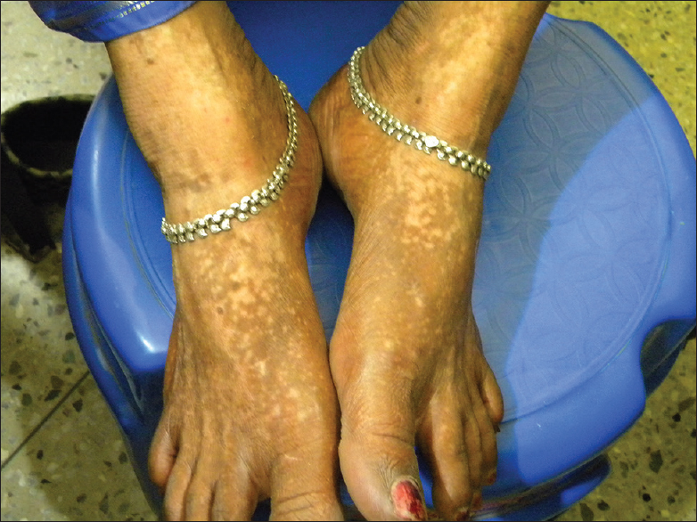 Figure 8: Chemical vitiligo on both feet from black shoes with numerous acquired confetti macules along with larger depigmented patches