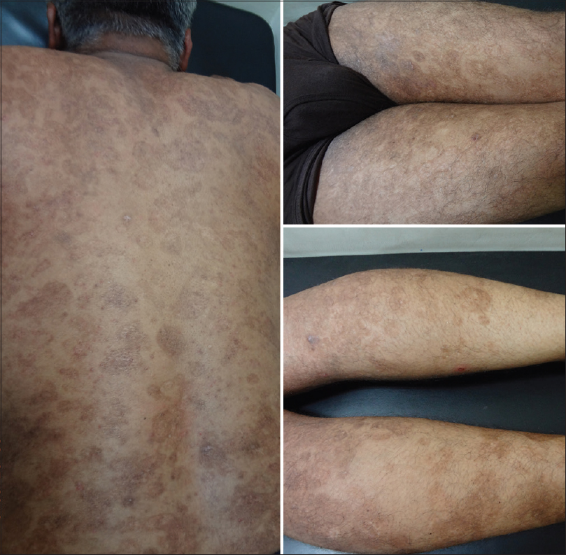 Figure 3: Post-omalizumab at 6 weeks complete resolution of skin lesions and marked improvement in post-inflammatory hyperpigmentation